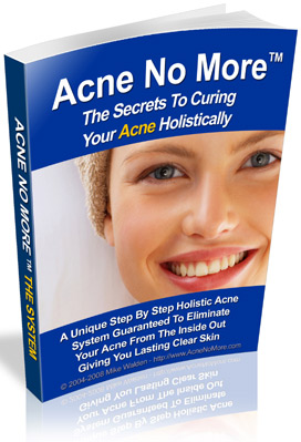 OFFERED: Acne No More™