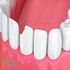 SERVICES: Dental Bonding And Tooth Colored Filling Treatment In Roswell GA